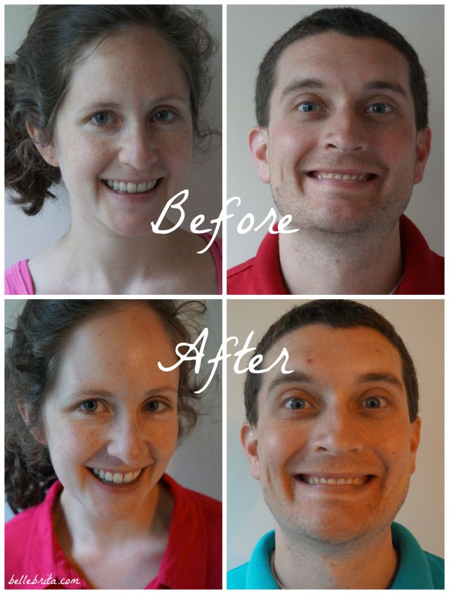My husband and I loved using derma e products for a week! While it's hard to tell in these photos, our skin felt so much better after using derma e products morning and night.